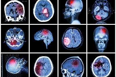 Brain Injuries Lawyer